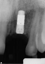 Zimmer trabecular metal implant