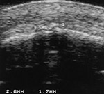 Knee calcifications on US