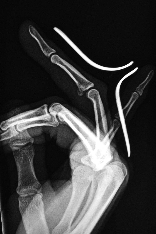 smith fracture splint