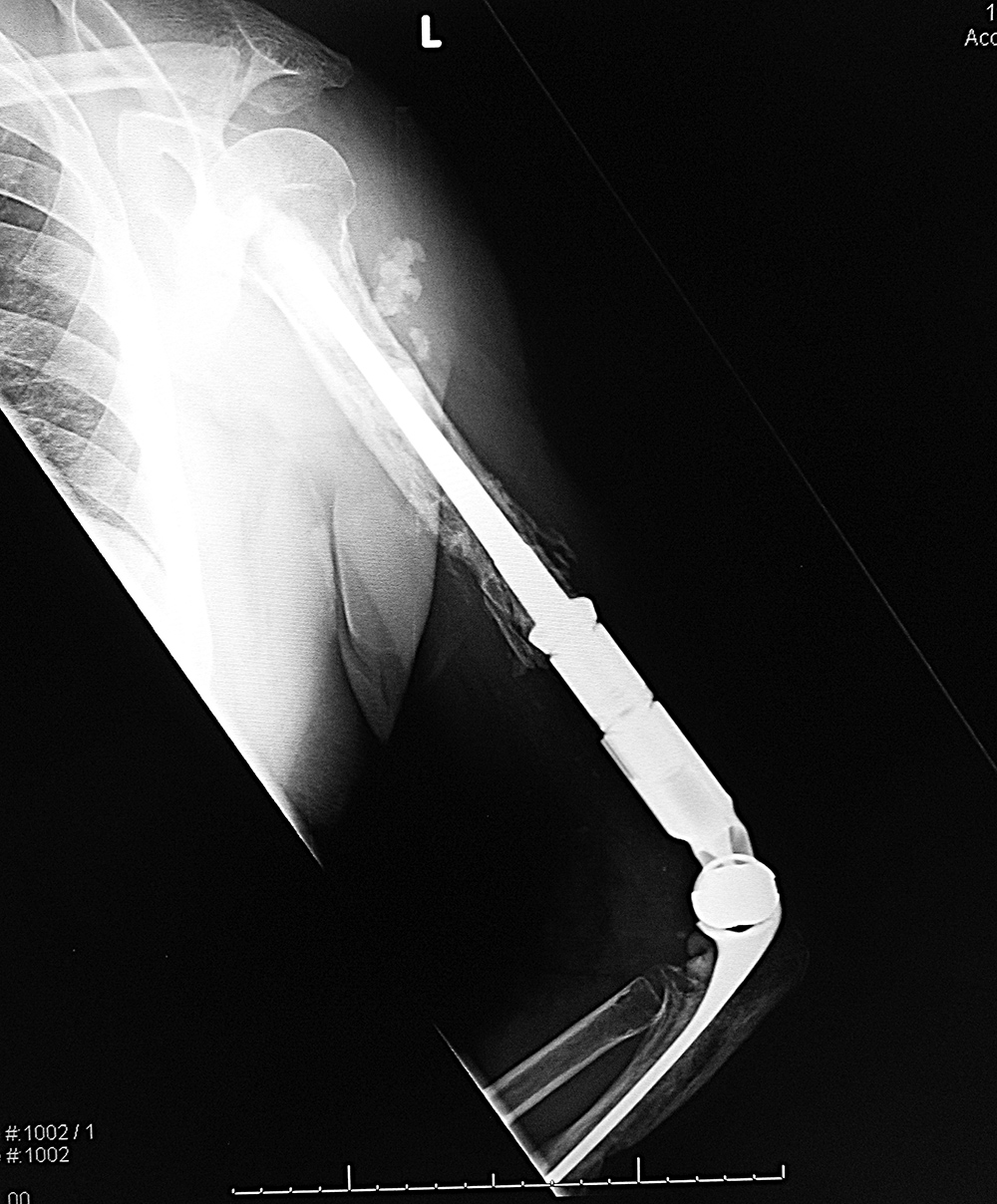 prothesis loosening Doctors give unbiased, helpful information on indications, contra-indications, benefits, and complications: dr hettinger on hip replacement loosening symptoms: implant loosening causes pain, especially with weight bearing the knee generally will make more lubricating fluid as well, causing swelling.