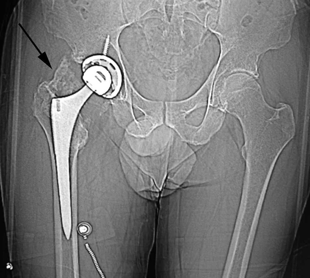 bacteria in hip replacement prothesis Implant failure due to bacterial infection of the implant can occur at any point of implant lifetime bacteria may already reside on the implant or be introduced during the implantation typical failure mechanisms include tissue damage and implant detachment due to bacteria generated biofilm.