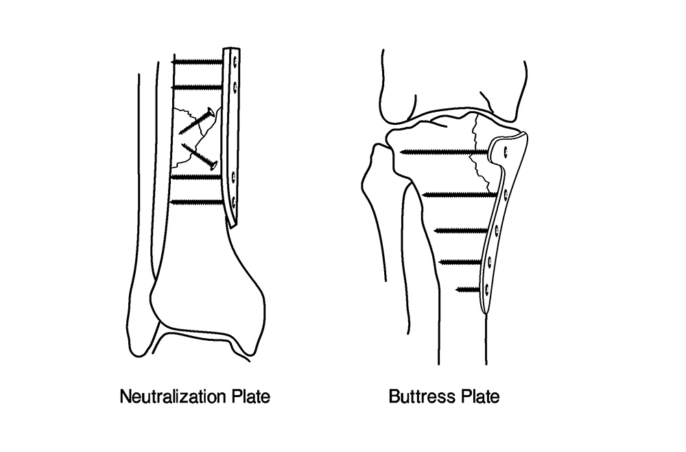wave-plate osteosynthesis Anterior plating as a surgical alternative in the treatment anterior plating as a surgical alternative in the treatment of of a wave plate osteosynthesis.